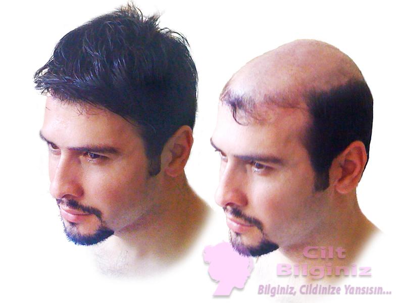 Irsi Saç Dökülmesi